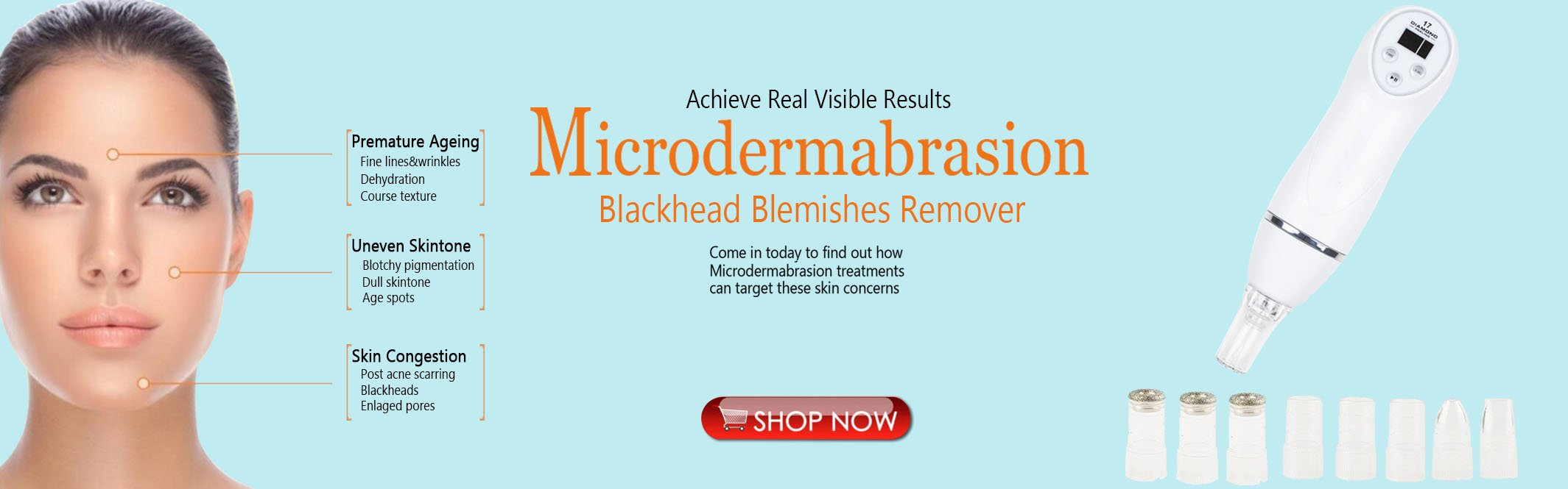 AleoBeauty microdermabrasion and blackhead remover